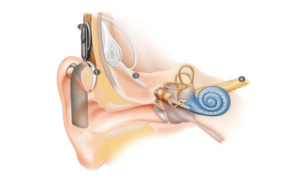 the designs and benefits of a cochlear implant Cochlear implants are a solution for children and adults with severe or profound hearing loss a cochlear implant is often the best option for better hearing.